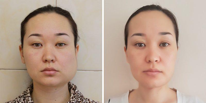 Пациентка до и после резекции опухоли нижней челюсти с реконструкцией