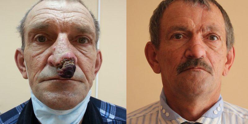 Реконструкция после рака наружного носа