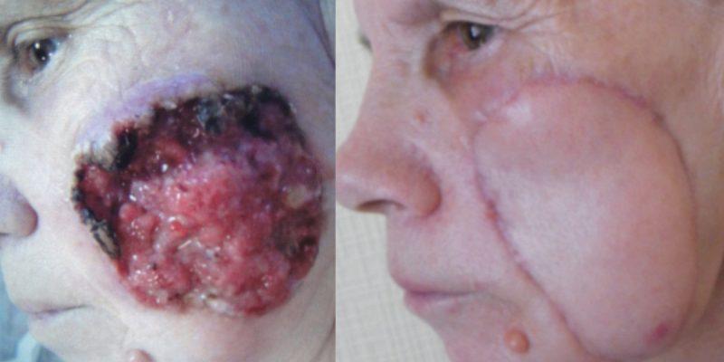 Рак кожи щеки: фото до и после
