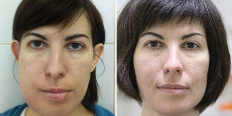 Евгения: опухоль нижней челюсти