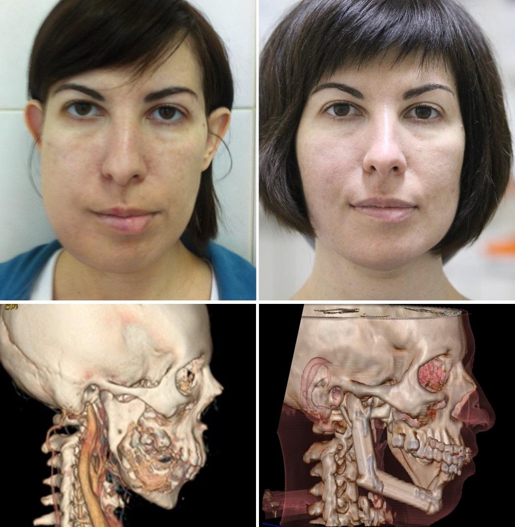 Результат удаления опухоли нижней челюсти с одномоментной реконструкцией