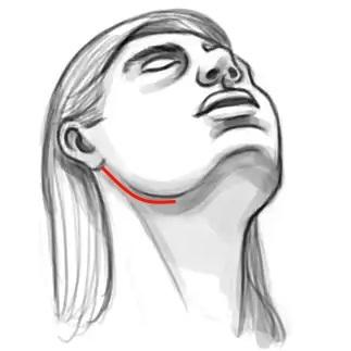 Доступ при реконструкции нижней челюсти без разреза на подбородке